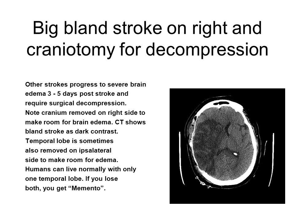 A Quick Primer of Brain CT/MRI David Crippen  Normal CAT of