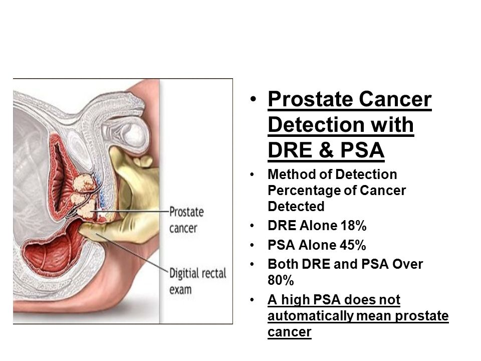 Colorful Anatomy Of Prostate Cancer Inspiration - Anatomy And ...