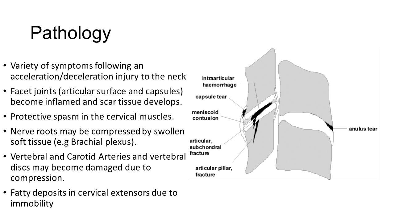 Whiplash Associated Disorder. Normal Anatomy Vast amount of soft ...