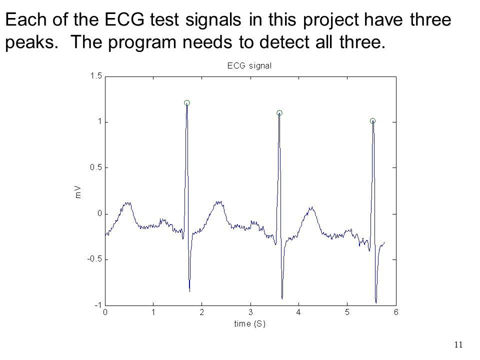 1 EGR111 Arrhythmia Project  2  This project is based on