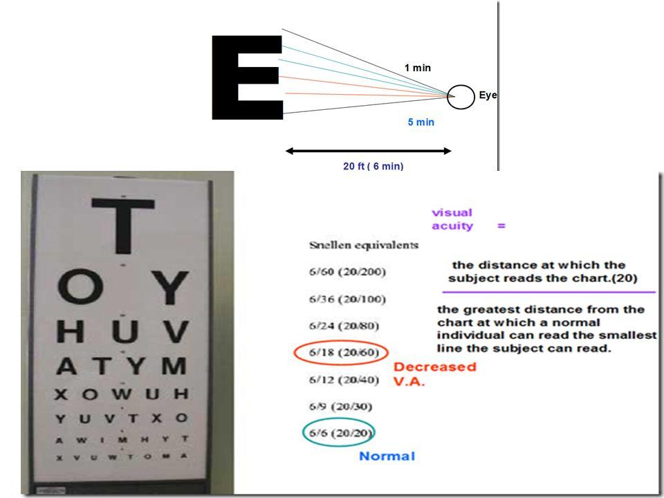 Vision O B J E C T I V Es Describe The Accessory Structures Of The