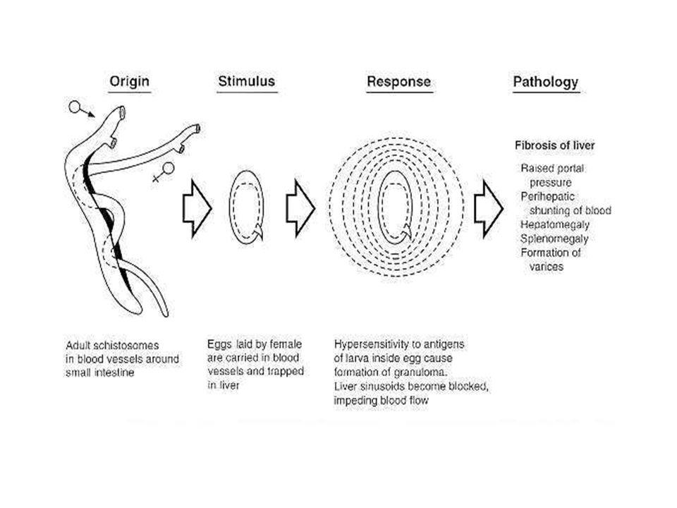 diagram of schistosoma eggs wiring diagram progresif rh 10 17 20 mugher sandvik sps de  diagram of schistosoma egg