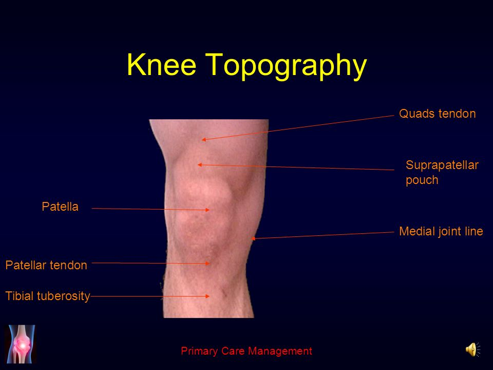 The knee andrew pearse consultant trauma and orthopaedics 4 primary care management anatomy complex hinge joint tibio femoral articulation medial lateral patello femoral articulation function depends on ccuart Gallery