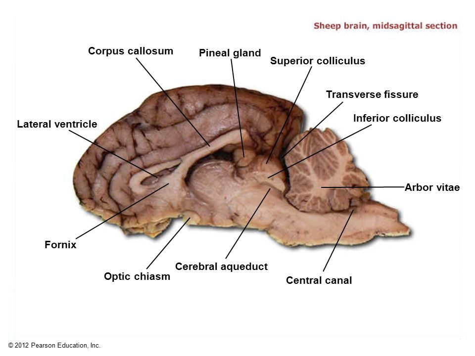 Sheep Brain Hypophysis Diagram - Complete Wiring Diagrams •