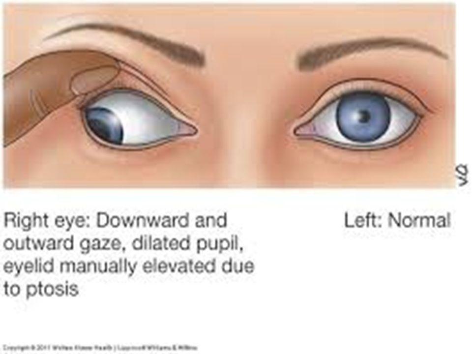 Cranial nerve palsy. - ppt video online download