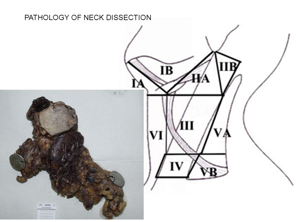 PATHOLOGY OF NECK DISSECTION. VIEW FROM DEEP ASPECT OF NECK ...