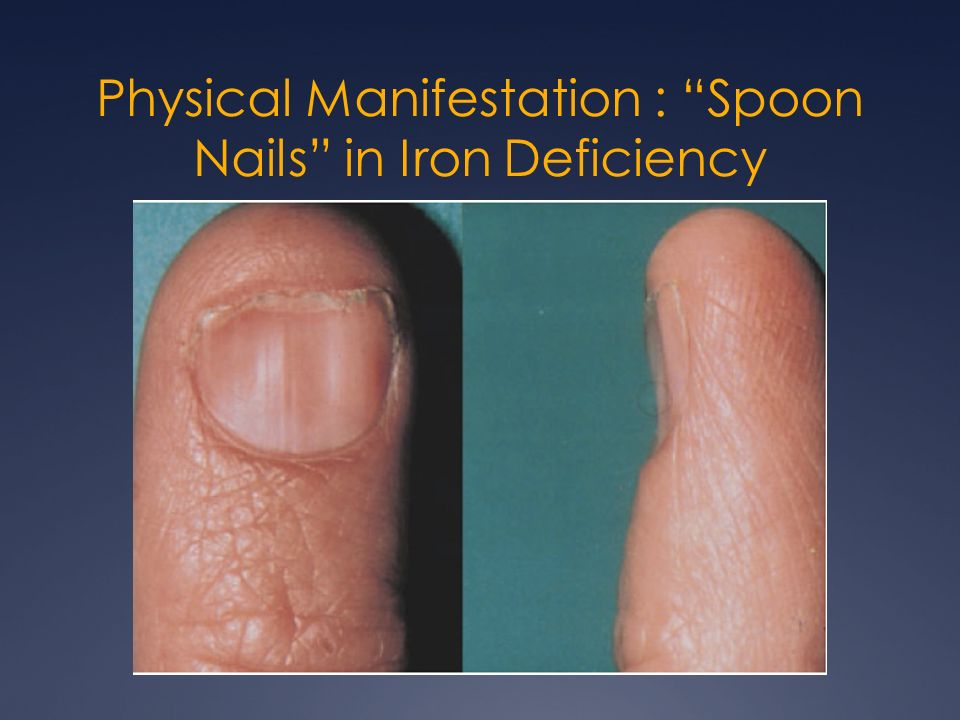 8 Physical Manifestation Spoon Nails In Iron Deficiency