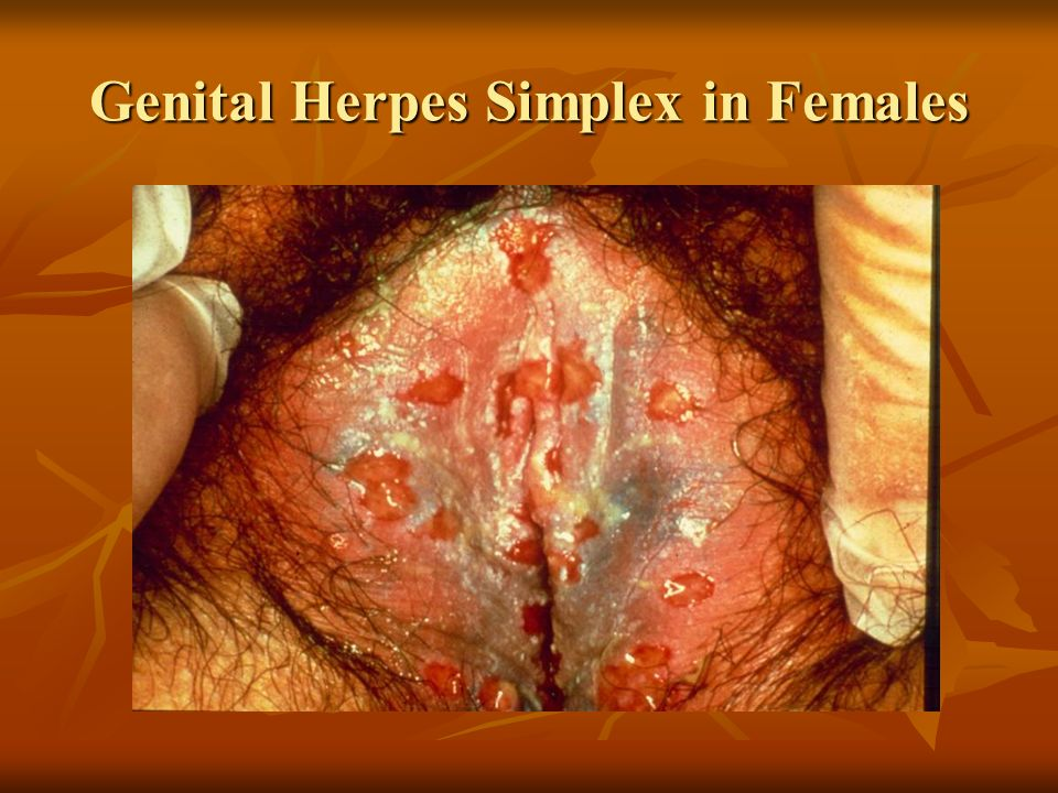 Sex genital herpes vulva picture sex
