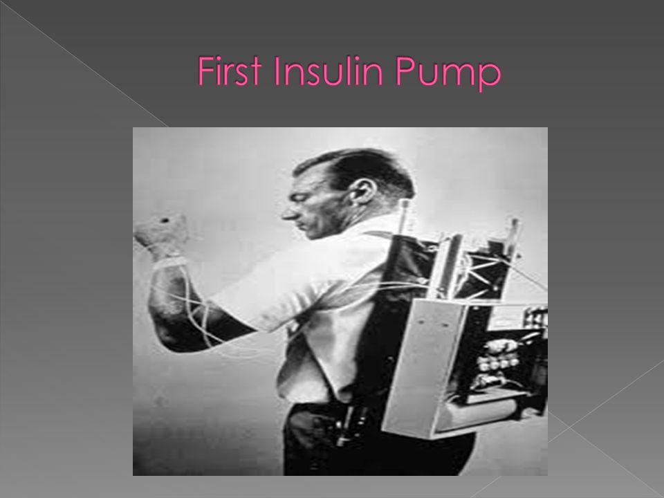 diabetes in of treatment History advancement nkN0O8PwX
