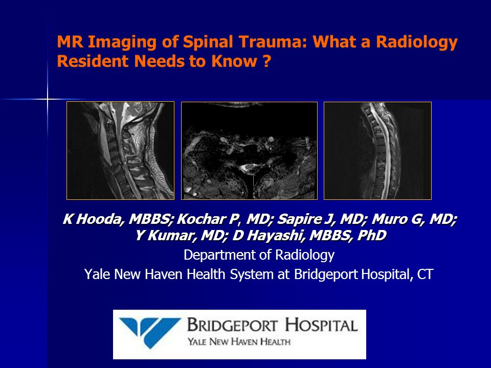 MR Imaging of Spinal Trauma: What a Radiology Resident Needs to Know
