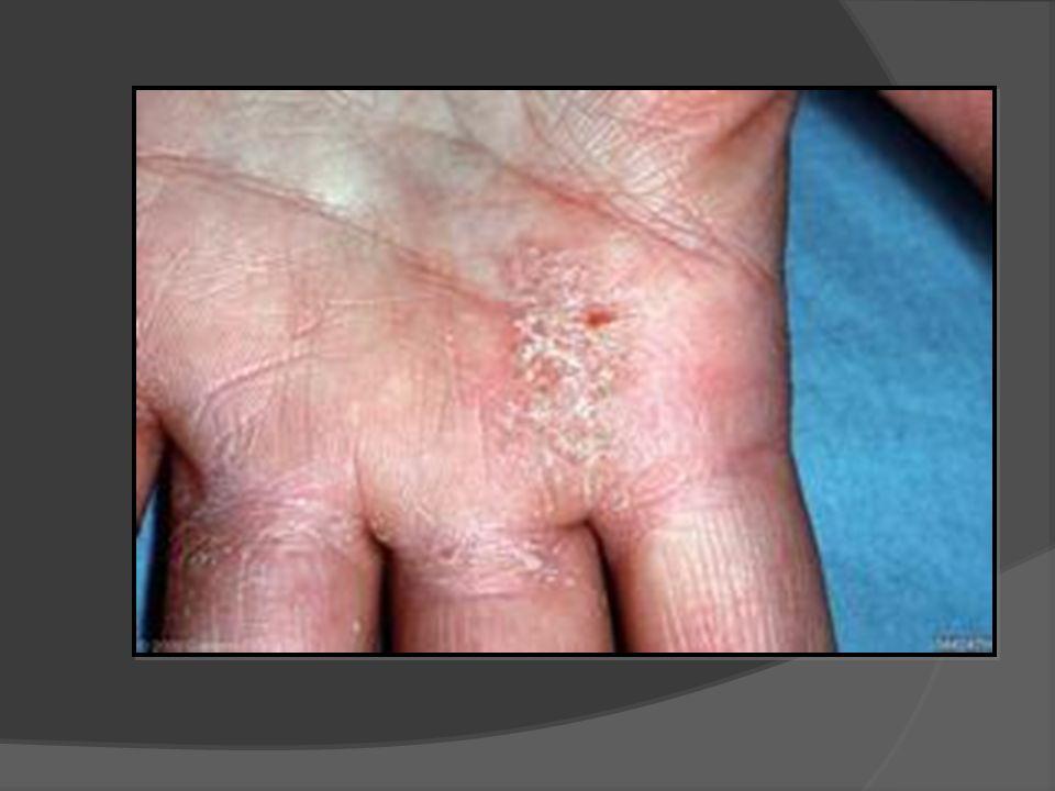 Gp Dermatology Dr Anita Lowe Mbbs Fracgp Ppt Video Online Download