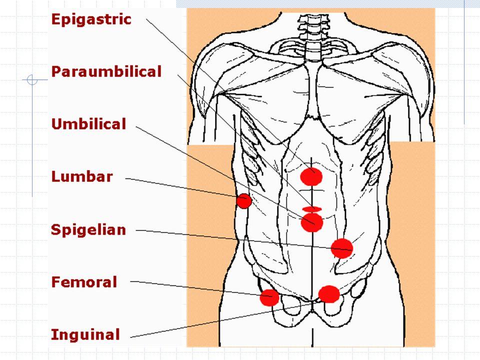 Inguinal Hernia Dr Budi Irwan Spb Kbd Division Of Digestive