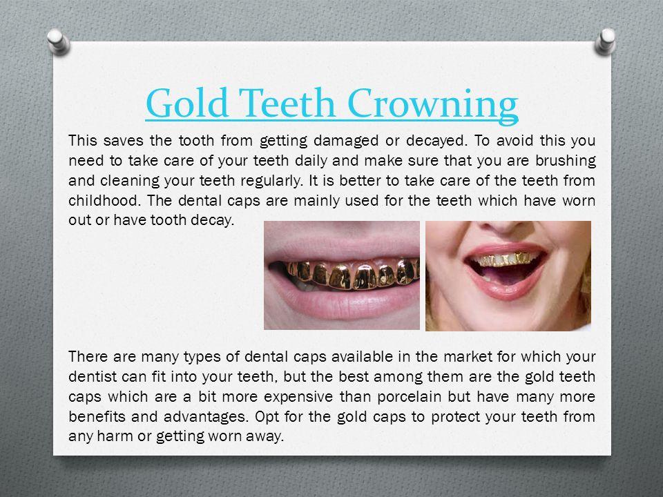 2 Gold Teeth Crowning ...