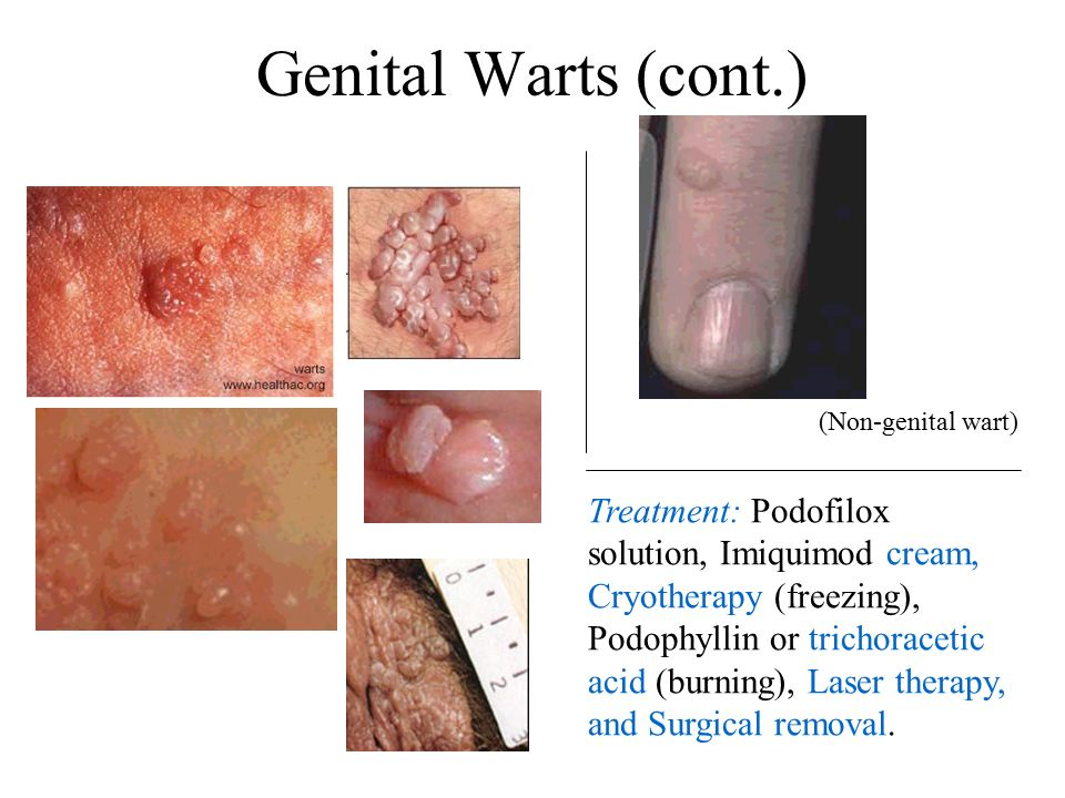 Genital Warts (HPV) Genital warts are soft wart-like growths