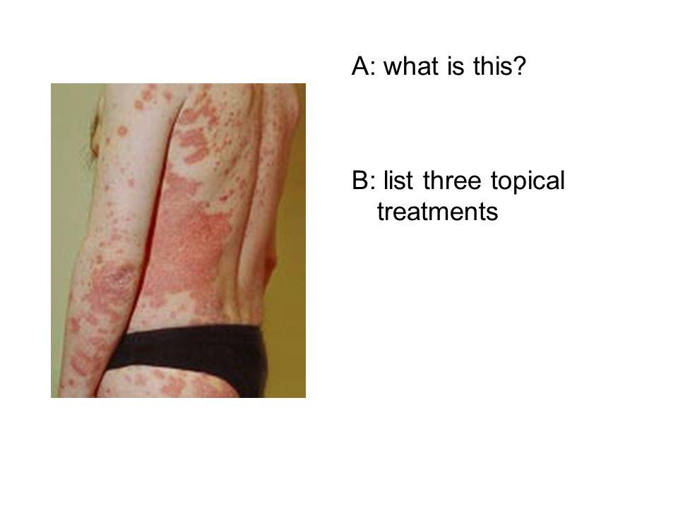 Yr 4 Dermatology Student Slideshow Quiz  A: What is this? B
