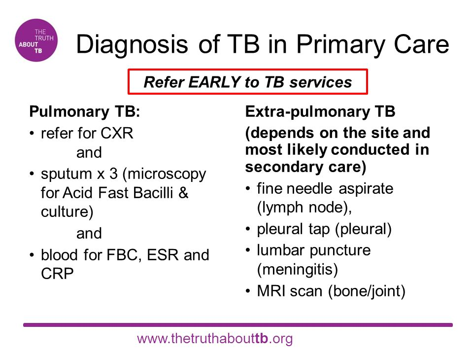 Tuberculosis: management, control and prevention Developed