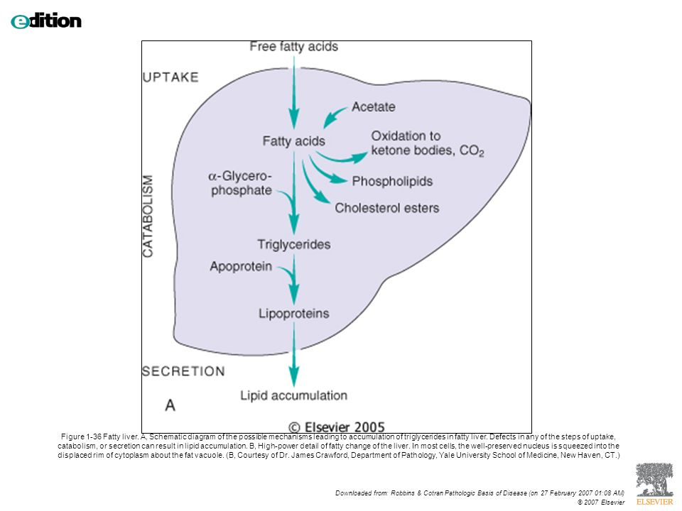 Cellular adaptations cell injury and cell death ppt download figure 1 36 fatty liver ccuart Choice Image