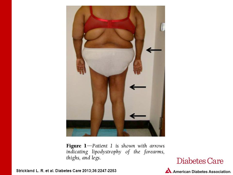 Type 2 Diabetes With Partial Lipodystrophy of the Limbs A