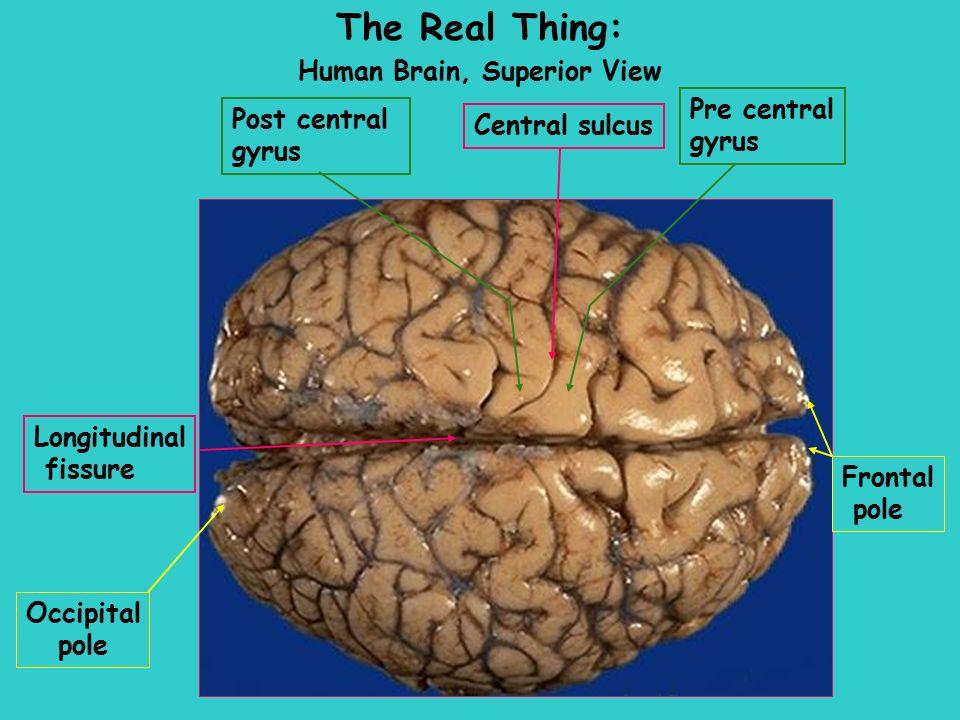 Week 10 Central Nervous System The Brain Sheep HumanHuman BrainBrain ...