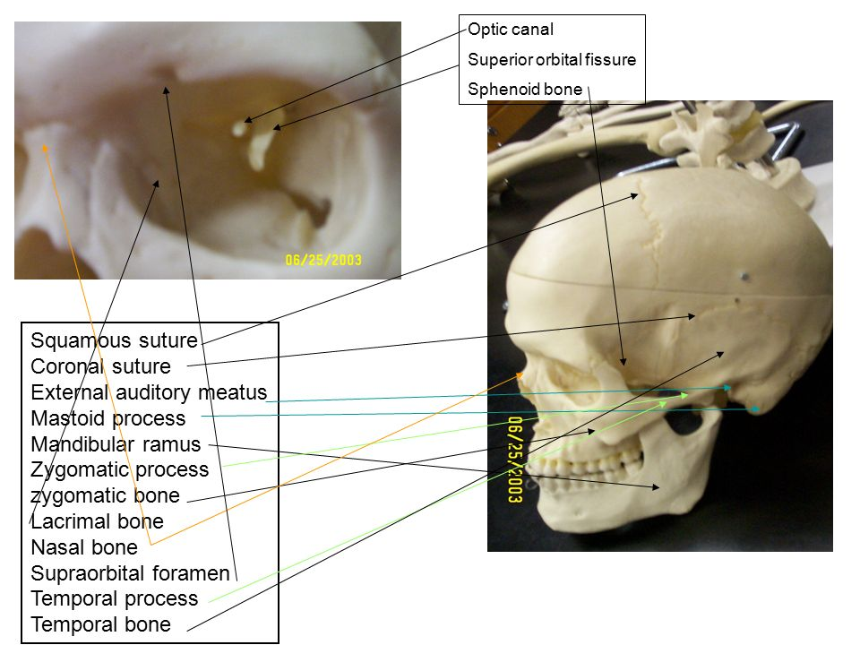LAB practical Bones This is a powerpoint that I made as an