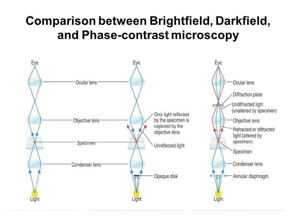 Microscopy prepared by nishat jahan in this chapter students will 27 comparison between brightfield darkfield and phase contrast microscopy ccuart Images