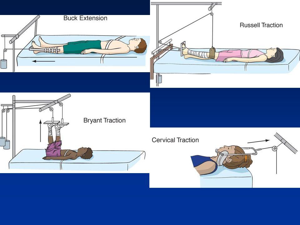 Musculoskeletal  Fractures Common in childhood Developmental