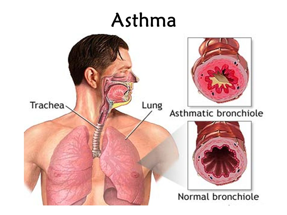Pneumonia Infection and inflammation of the lungs Alveoli
