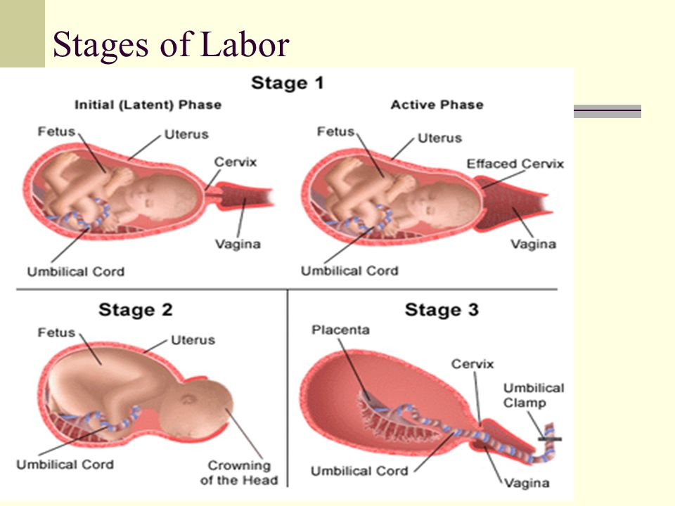 Labor and delivery  Objectives Distinguish the differences