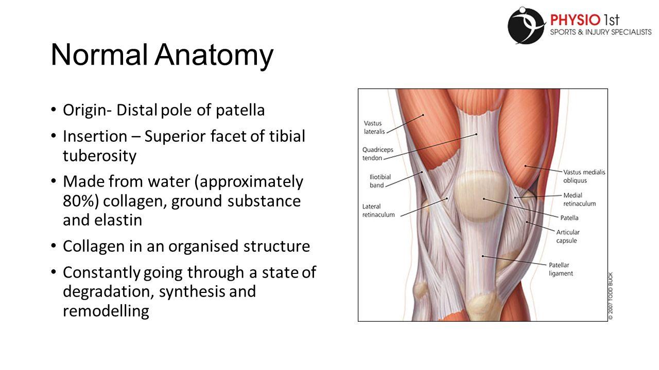 Patellar Tendinopathy. Normal Anatomy Origin- Distal pole of patella ...