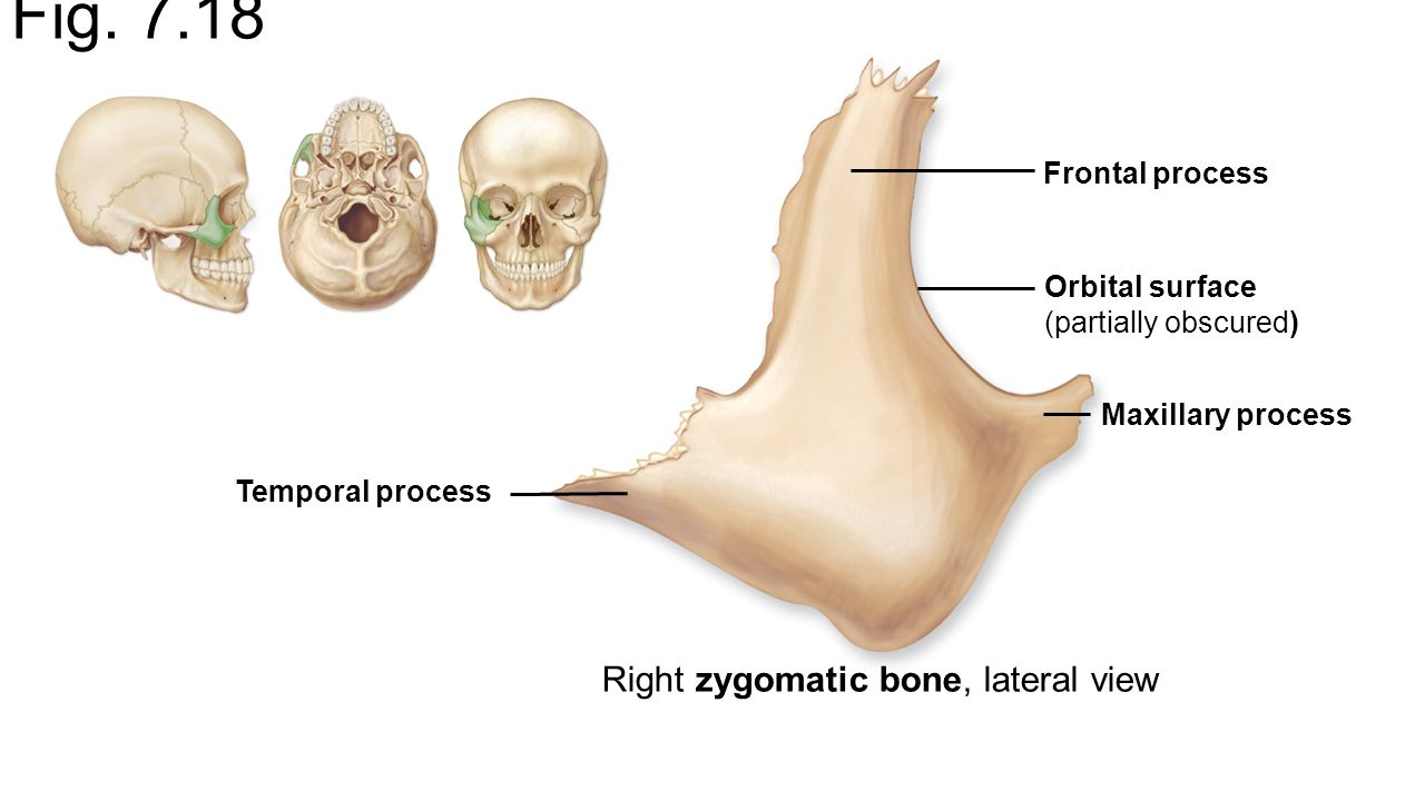 End Of Chapter 6 Types Of Bones And Bone Markings And Chapter Ppt