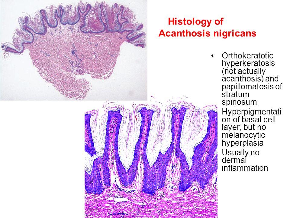 papillomatosis and acanthosis)