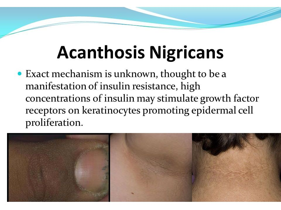 Association of acanthosis nigricans and skin tags with