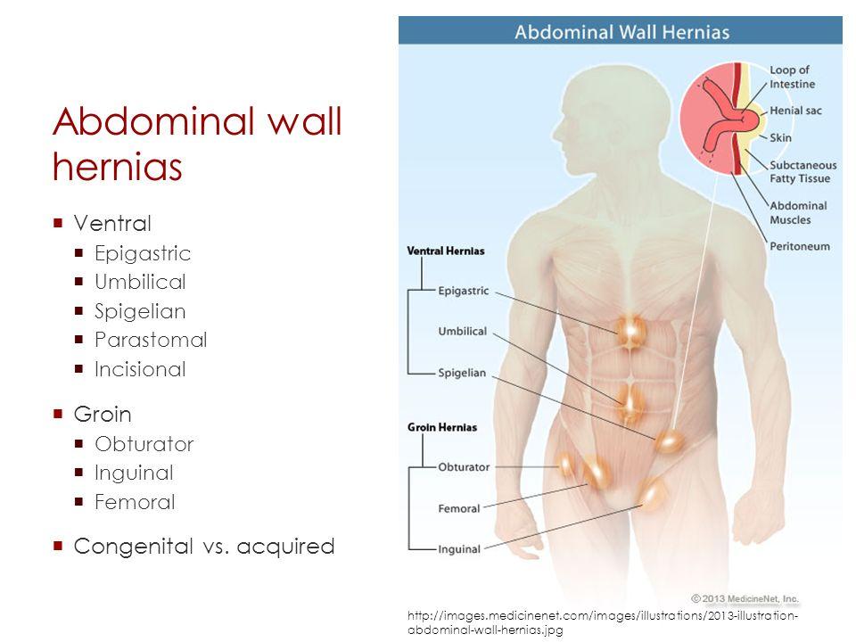 abdominal flutter hernia