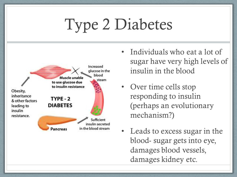 Type 2 Diabetes Individuals who eat a lot of sugar have very high levels of insulin in the blood Over time cells stop responding to insulin (perhaps an evolutionary mechanism ) Leads to excess sugar in the blood- sugar gets into eye, damages blood vessels, damages kidney etc.