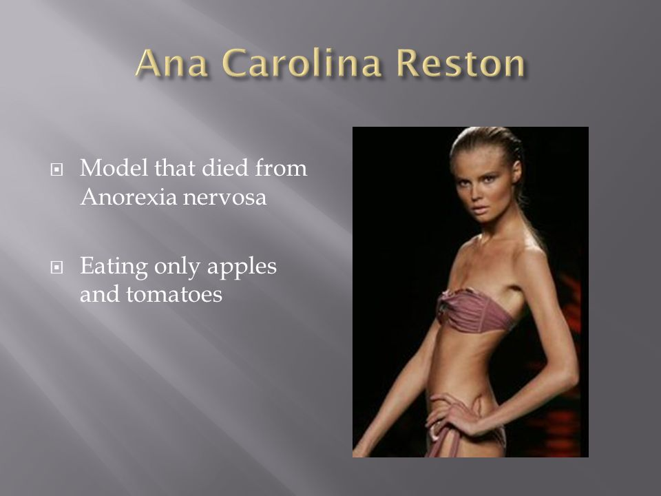 Model that died from Anorexia nervosa Eating only apples and tomatoes