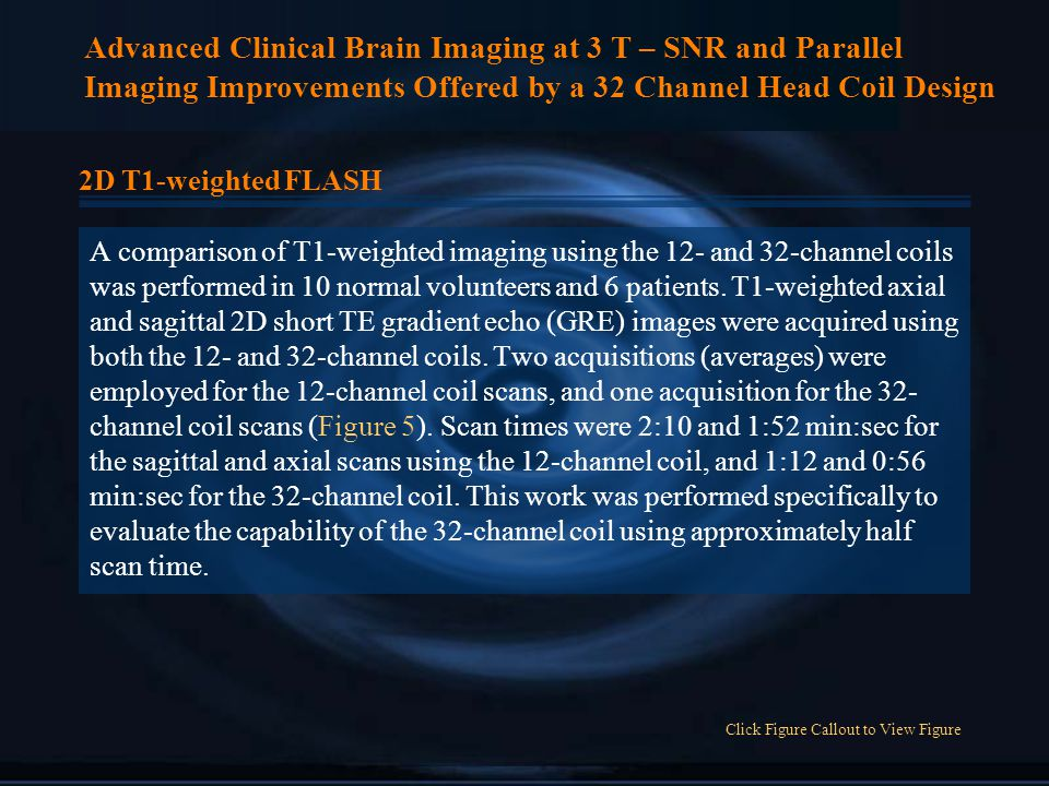 Advanced Clinical Brain Imaging at 3 T – SNR and Parallel Imaging Improvements Offered by a 32 Channel Head Coil Design 2D T1-weighted FLASH A comparison of T1-weighted imaging using the 12- and 32-channel coils was performed in 10 normal volunteers and 6 patients.