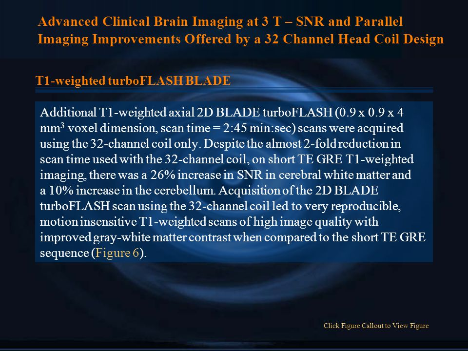 Advanced Clinical Brain Imaging at 3 T – SNR and Parallel Imaging Improvements Offered by a 32 Channel Head Coil Design T1-weighted turboFLASH BLADE Additional T1-weighted axial 2D BLADE turboFLASH (0.9 x 0.9 x 4 mm 3 voxel dimension, scan time = 2:45 min:sec) scans were acquired using the 32-channel coil only.