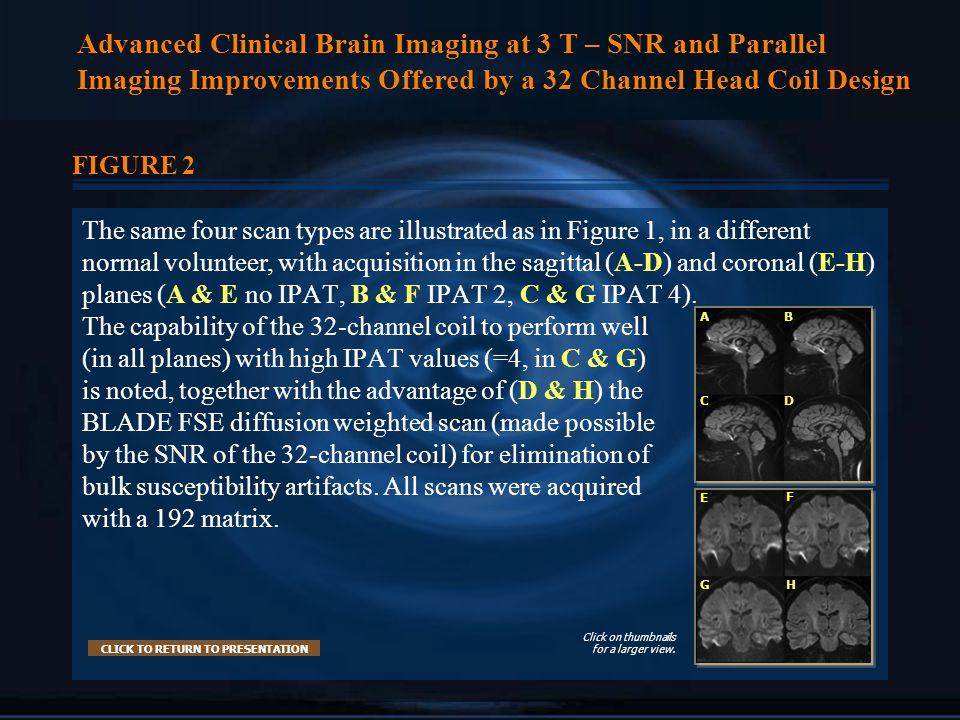 Advanced Clinical Brain Imaging at 3 T – SNR and Parallel Imaging Improvements Offered by a 32 Channel Head Coil Design FIGURE 2 The same four scan types are illustrated as in Figure 1, in a different normal volunteer, with acquisition in the sagittal (A-D) and coronal (E-H) planes (A & E no IPAT, B & F IPAT 2, C & G IPAT 4).