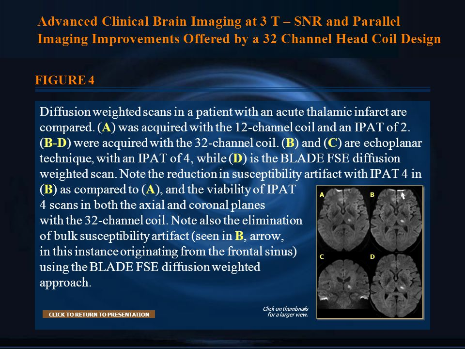 Advanced Clinical Brain Imaging at 3 T – SNR and Parallel Imaging Improvements Offered by a 32 Channel Head Coil Design FIGURE 4 Diffusion weighted scans in a patient with an acute thalamic infarct are compared.
