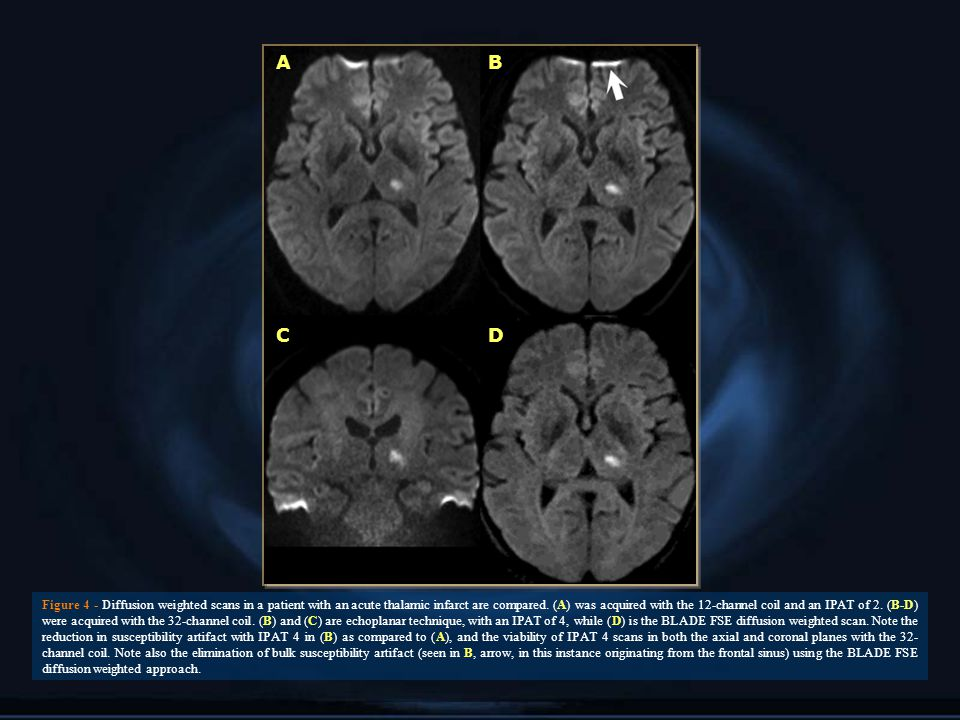 AB CD Figure 4 - Diffusion weighted scans in a patient with an acute thalamic infarct are compared.