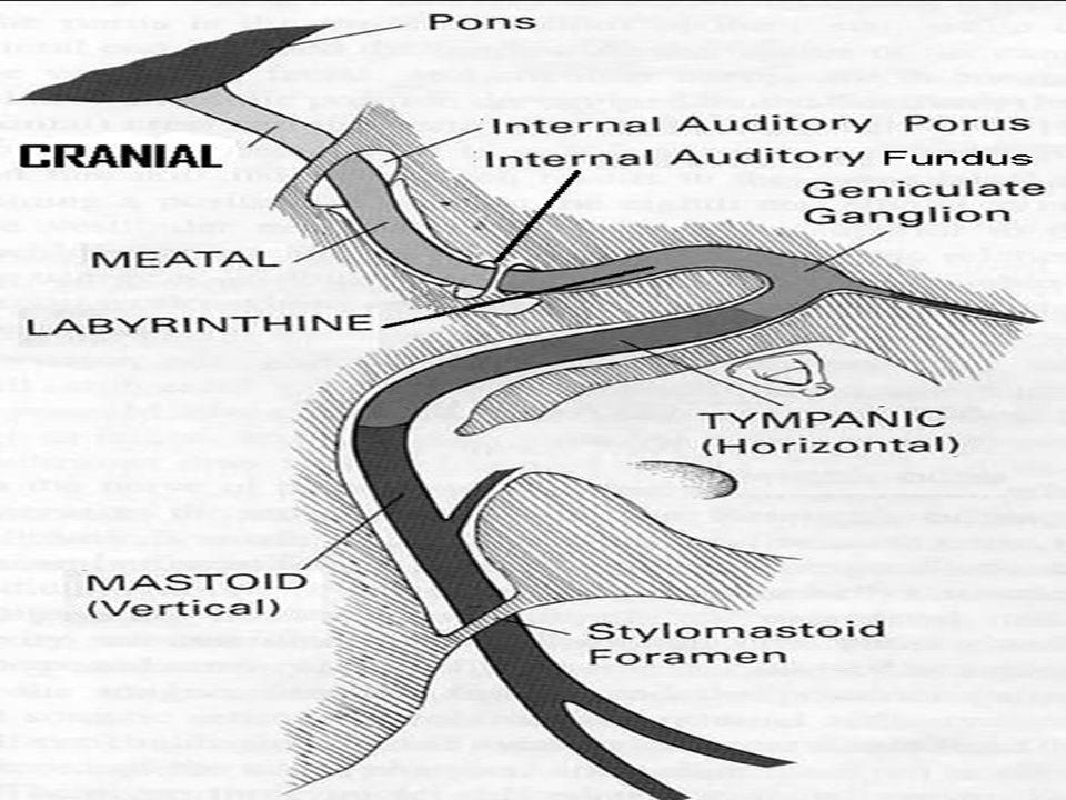Facial Nerve Paralysis - ppt video online download