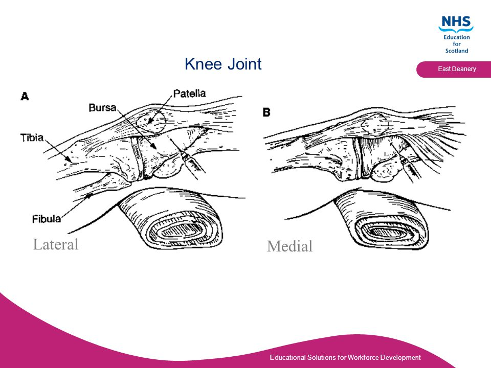 Educational Solutions for Workforce Development East Deanery Knee Joint Lateral Medial Knee slightly flexed
