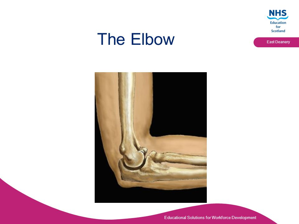 Educational Solutions for Workforce Development East Deanery The Elbow