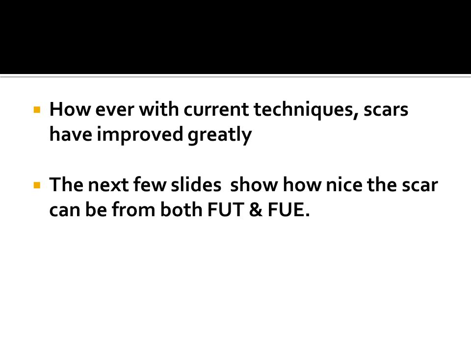How ever with current techniques, scars have improved greatly The next few slides show how nice the scar can be from both FUT & FUE.