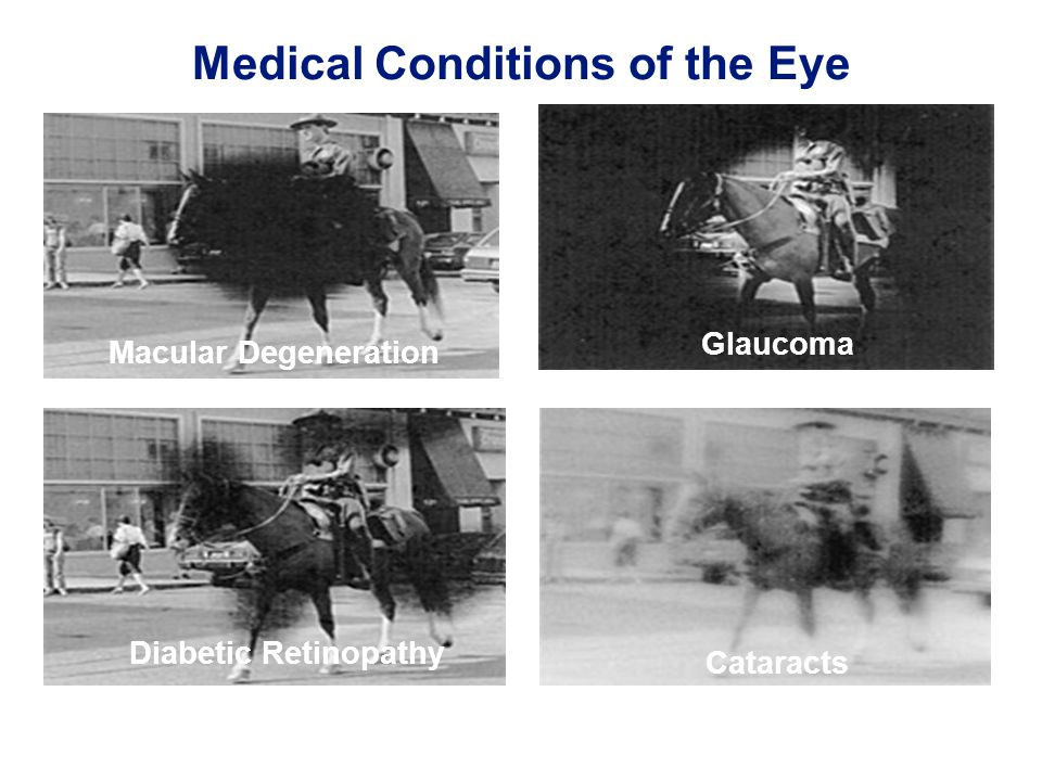 20 Medical Conditions of the Eye Macular Degeneration Cataracts Diabetic Retinopathy Glaucoma