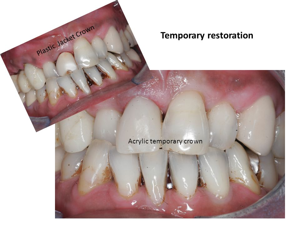 3 Implant Crowns In Lower Right Molar One By One Implant Placement