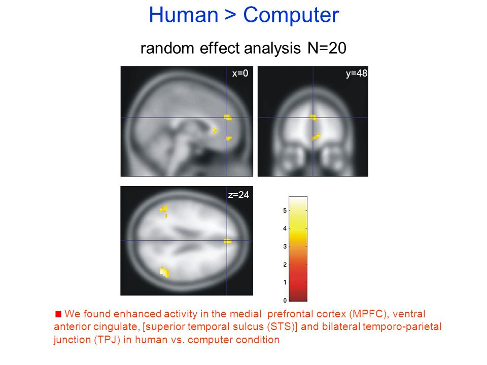 Human > Computer random effect analysis N=20 We found enhanced activity in the medial prefrontal cortex (MPFC), ventral anterior cingulate, [superior temporal sulcus (STS)] and bilateral temporo-parietal junction (TPJ) in human vs.