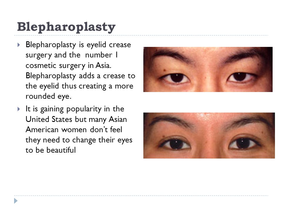 Blepharoplasty Blepharoplasty is eyelid crease surgery and the number 1 cosmetic surgery in Asia.