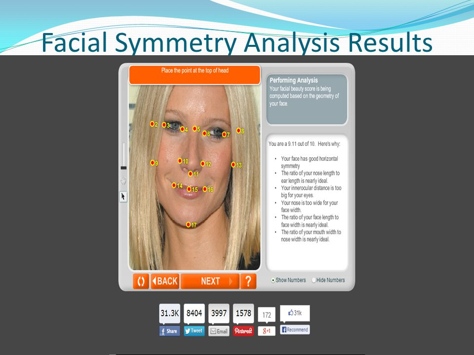 Facial Symmetry Analysis Results