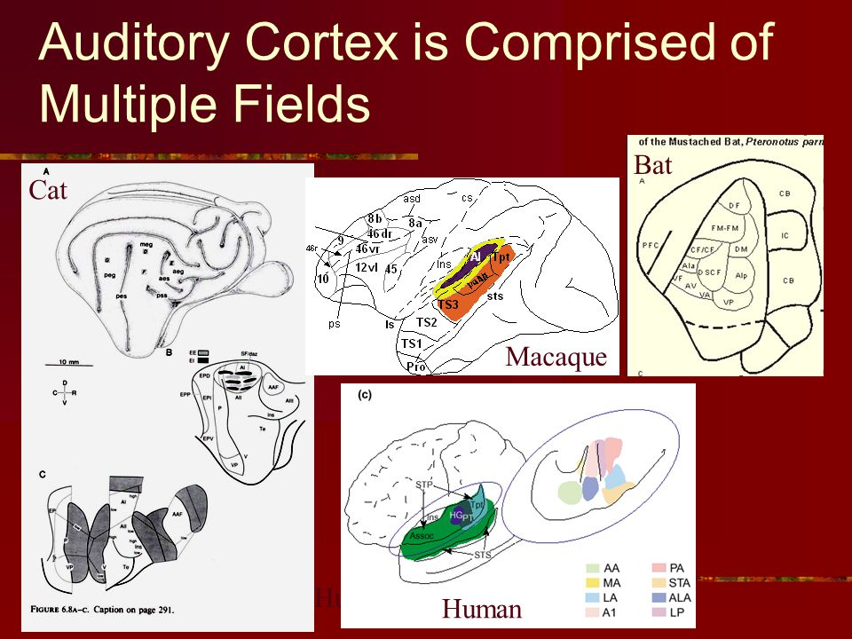Auditory Cortex is Comprised of Multiple Fields Cat Human Bat Macaque Human